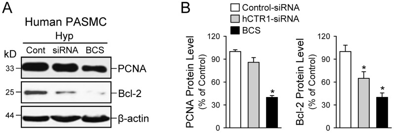 Chelation of Cu and knockdown of CTR1 both decrease Bcl-2 expression in human PASMC during hypoxia. A: Western blot analysis on PCNA (a marker for cell proliferation) and Bcl-2 (an anti-apoptotic protein) in PASMC transfected with scrambled siRNA (Cont) or human CTR1-siRNA (siRNA) and PASMC treated with the Cu chelator BCS. B: Summarized data (mean±SE) showing PCNA (left panel) and Bcl-2 (right panel) protein levels in PASMC transfected with Control-siRNA or hCTR1-siRNA and PASMC treated with BCS. * P