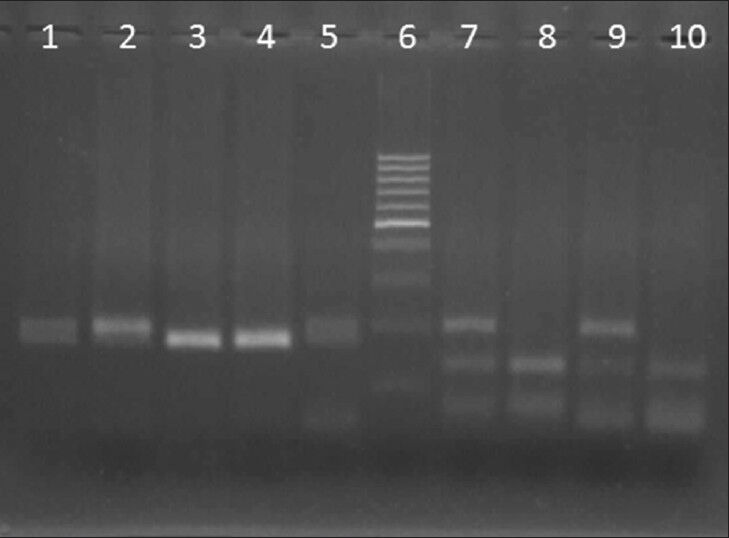 Deletion detection of survival motor neuron 1 (Exon 7, 8) performed by digestion of polymerase chain reaction product with <t>DraI</t> and DdeI, respectively. Digestion results were analyzed on 3% agarose gel. Lane 1 and 2: Different patients without deletion in exon 7 of survival motor neuron1 (SMN1), lane 3: Patient with deletion in exon 7, lane 4: Positive control and lane 5: Normal control, Lane 6: 100 bp marker; Lane 7: Patient without deletion in exon 8 of <t>SMN,</t> lane 8: Patient with deletion in exon 8, lane 9: Normal control, lane 10: Positive control