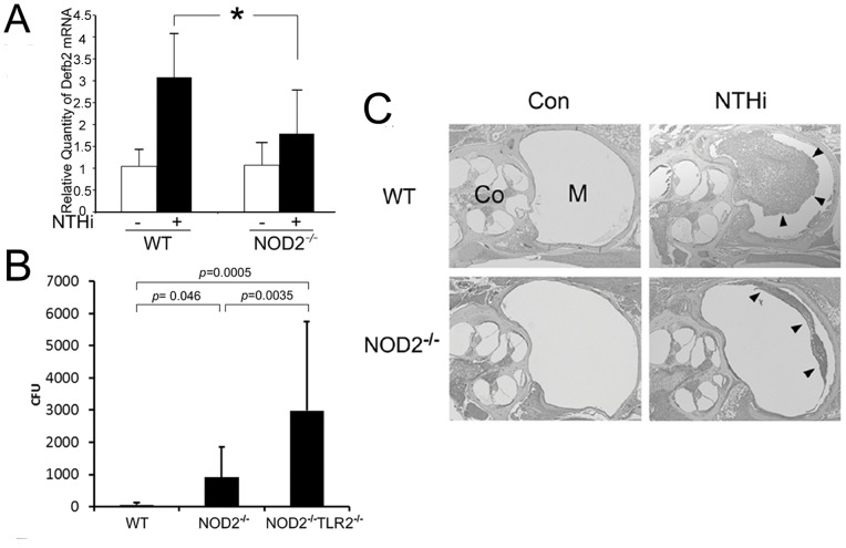 NOD2 is involved in bacterial clearance from the mouse middle ear. (A) Quantitative RT-PCR analysis shows that NOD2-deficient middle ear epithelial cells less up-regulate mouse Defb2 in response to the NTHi molecules, compared to the wild type cells. Values are given as the mean ± standard deviation (n = 3). *: p