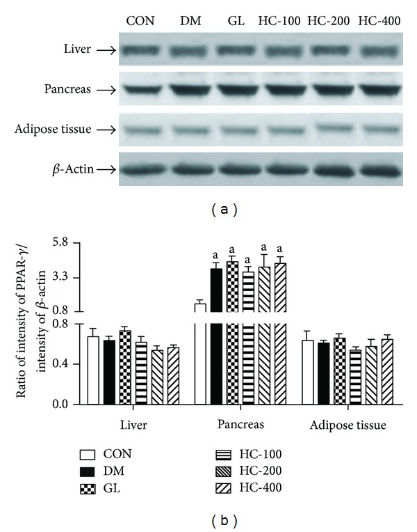Effect of HC (100, 200 and 400 mg/kg) on STZ-induced changes in the levels of expression of <t>PPAR-</t> γ in liver, pancreas, and adipose tissues. The blots (a) are representative of PPAR- γ in liver, pancreas, and adipose tissues. The results in the histogram (b) are expressed as ratio of relative intensity of levels of protein expression PPAR- γ to β -Actin. All values are mean ± SEM of three separate sets of independent experiments. a P
