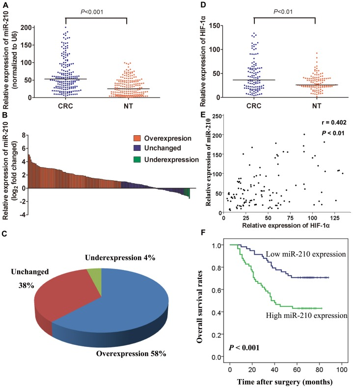 MiR-210 expression is increased in CRC tissues and associated with a poor prognosis. (A) MiR-210 expression was tested using qRT-PCR in 193 pairs of human CRC tissues (CRC) and adjacent non-tumorous tissues (NT), and its expression was normalized to the level of U6 small nuclear RNA (U6) expression in each sample. (B) Fold changes in miR-210 expression in each paired sample. The data are represented as a log 2 -fold change (cancer/normal), which was defined as > 1 (overexpression) and