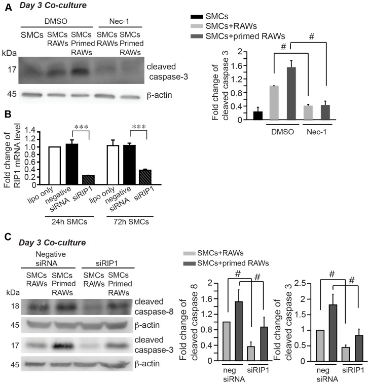 Receptor interacting protein-1 (RIP-1) underlies SMC apoptosis in the co-culture. ( A ) Inhibition of RIP1 with necrostatin-1 (nec-1, 40 μM) profoundly diminished apoptosis in the co-culture. ( B ) Efficiency of siRNA-mediated knockdown of RIP1 was examined by real-time PCR analysis at 24 hours and 72 hours after siRNA transfection to SMC. ( C ) SiRNA-mediated knockdown of RIP1 in SMCs prior to exposing SMCs to macrophages significantly attenuated apoptosis in the co-culture. Apoptosis was evaluated by Western blot analysis of cleaved caspase-8 and -3. Data are mean±SEM. n = 3∼4, # p
