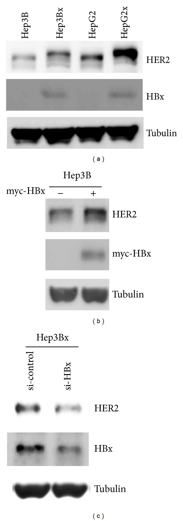 HBx induced HER2 protein expression in HCC cells. (a) The protein expressions of HER2, HBx, and Tubulin in two HBx-paired HCC cells were examined by Western blot ( N = 4). (b) Myc-HBx expression vector was transiently transfected into Hep3B HCC cells for 48 hrs. The HER2 and myc-HBx protein expressions were analyzed by Western blot ( N = 3). (c) Transient transfection of HBx siRNA was performed in Hep3Bx cells for 4 days. The HER2 protein expression and gene silencing of HBx protein expression were examined by Western blot ( N = 3).