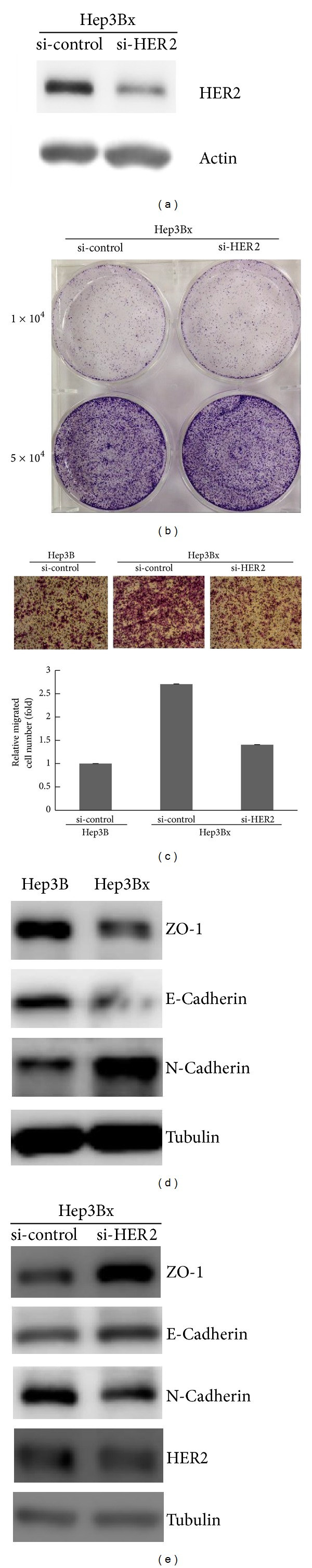 The increased HER2 protein expression was responsible for the migration ability of HBx-expressing HCC cells. ((a), (b), (c), and (e)) Hep3Bx cells were transiently transfected with either si-control or si-HER2 for 4 days. Then, cells were either harvested or reseeded for further experiments. Gene silence of HER2 expression was confirmed by Western blot (a) ( N = 3). The relative growth rate was determined by crystal violet staining (b) ( N = 3). The migration of Hep3Bx cells was examined by Transwell migration assay for 48 hrs. The representative pictures of migrated cells were visualized and quantified (c) ( N = 3). The expressions of metastatic factors were examined by Western blot (e) ( N = 3). (d) The expressions of metastatic factors in both Hep3B and Hep3Bx cells were examined by Western blot ( N = 3).