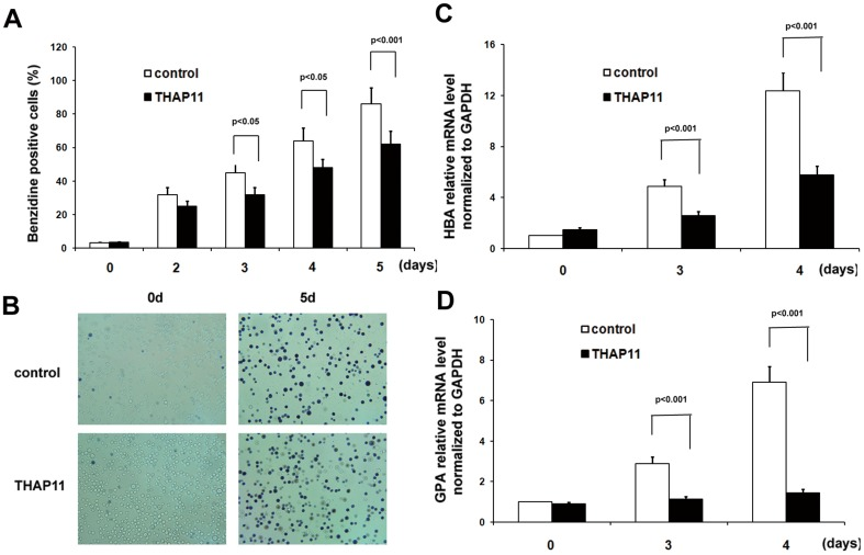 THAP11 overexpression leads to inhibition of hemin induced erythroid differentiation of K562 cells. (A) THAP11 lentivirus infected K562 cells (THAP11-LV) and control cells were treated with 40 µM hemin for the indicated lengths of time and the benzidine-positive cells were counted. The pictures of cells treated with hemin for 5 days were shown in (B). (C) HBA mRNA level and (D) GPA mRNA level were detected using real-time PCR analysis. Real-time PCR results were expressed as fold induction relative to control cells at day 0 and normalized to GAPDH mRNA.