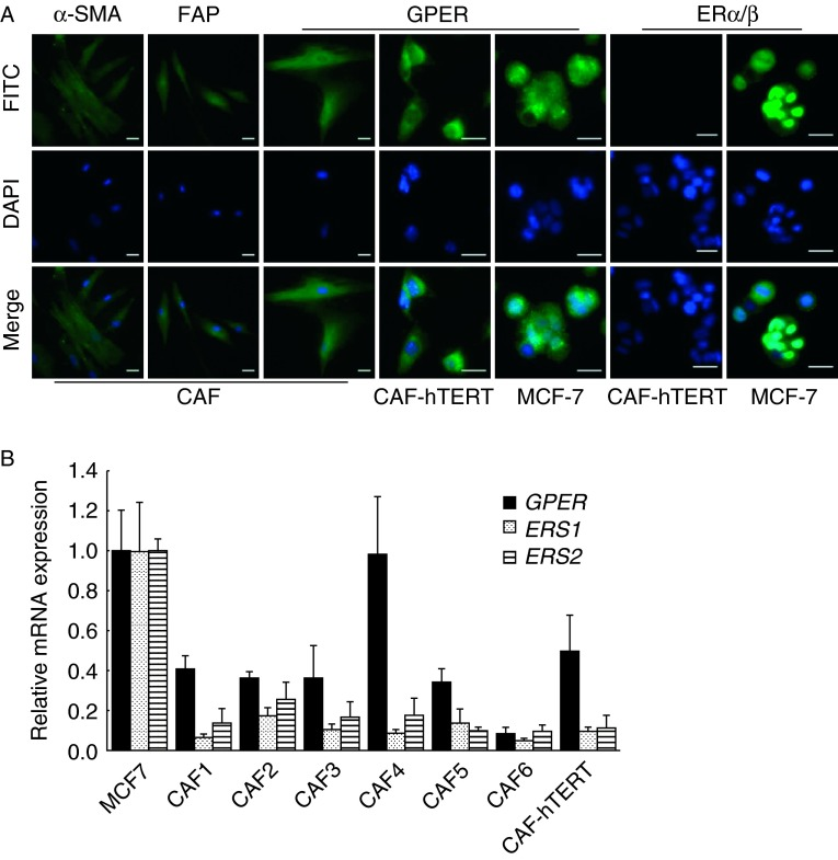 GPER is expressed in primary and immortalized breast CAFs. (A) CAFs were identified by immunofluorescent staining with <t>α-SMA</t> and FAP. ERs were detected in primary breast CAFs, immortalized CAFs (CAF-hTERT), and MCF-7 cells as positive controls. Scale bars: 25 μm. (B) ER mRNA expression was evaluated by quantitative real-time RT-PCR in primary CAFs, CAF-hTERT cells, and MCF-7 cells. Gene expression was normalized to GAPDH , and results are shown as fold changes of mRNA levels compared with MCF-7 cells. The data are shown as means± s.d . for three independent experiments.