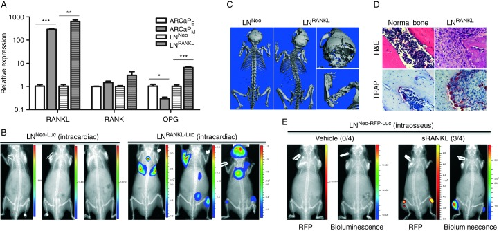RANKL overexpression in PCa cells confers increased lethal and osteolytic bone metastasis in nude mice. (A) RANKL, RANK, and OPG expression was assessed in human PCa ARCaP E and ARCaP M EMT cell model and human LN Neo and LN RANKL cells by qRT-PCR (* P