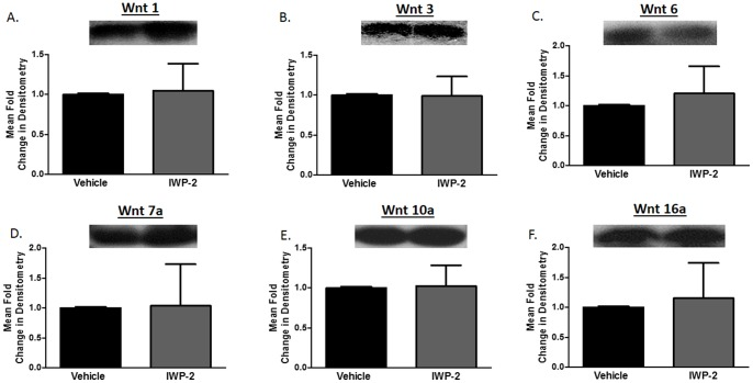 IWP-2 does not inhibit Wnt production from primary human CD8+ T cells. CD8+ T cells were isolated from <t>PBMCs</t> from healthy donors by negative selection and subsequently activated with 1 μg each anti-CD3/anti-CD28 then propagated in presence of 100 units/ml IL-2 for three days. On the third day supernatant was collected and 25 μl was analyzed by western blot for presence of Wnt 1 (A), 3 (B), 6 (C), 7a (D), 10a (E), and 16a (F).