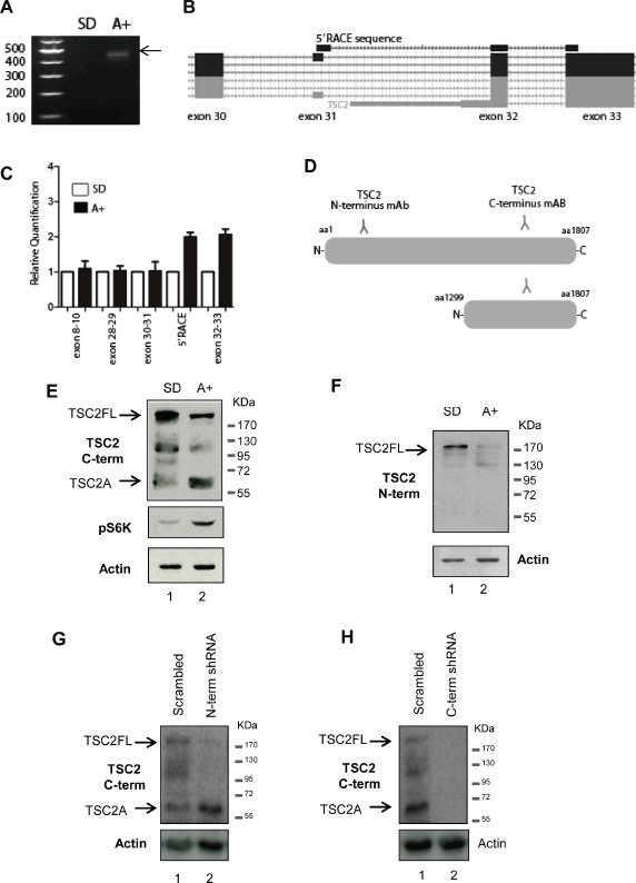Identification of a novel androgen regulated protein isoform encoded by the tumour suppressor gene <t>TSC2</t> in PCa cells (A) A novel internal initiation site from the TSC2 gene was identified in 24-hour androgen stimulated LNCaP cells using 5′ RACE. First strand cDNA synthesis was primed using a gene-specific primer to TSC2 exon 34 and a product was obtained for LNCaP cells treated with the synthetic androgen R1881 (A+), which was absent from steroid-depleted (SD) cells. (B) Visualisation of the sequenced 5′ RACE product on the UCSC genome browser indicated the androgen regulated TSC2 isoform contained a novel 5′ UTR, with a start codon at the beginning of exon 32. (C) Real-time qPCR using primer pairs to specific exons of TSC2 confirmed the location of the androgen-indued TSC2 internal 5' end. (D) Detection of TSC2 isoforms in LNCaP cells using antibodies specific to the N- and C terminus of the protein revealed an androgen inducible band, named isoform A, of approximately 60kDa detectable using the C-terminal antibody (E) which was absent when the same samples were probed with the N-terminal antibody (F). Anti-p70-S6K was used as a control to confirm the response to androgens. Notably, as well as induction of TSC2A, there was also a reduction in full-length TSC2 protein levels following androgen treatment detectable by both TSC2 antibodies. Stable transfection of LNCaP cells with <t>shRNA</t> targeting full-length TSC2 mRNA but not TSC2A (labelled N-term shRNA) showed that although there is loss of the full-length protein, TSC2A is still present, indicating it is not a degradation product of the full-length protein (G). Stable transfection with shRNA targeting both isoforms (labelled C-term shRNA) resulted in the loss of both proteins, demonstrating the specificity of the C-terminal TSC2 antibody (H).