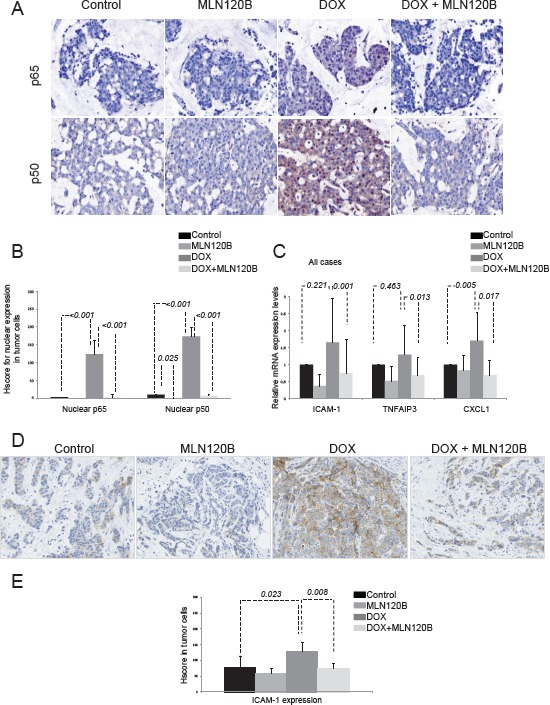 Doxorubicin induces p65/p50 nuclear translocation ex vivo in breast tumors and increases NF-κB-driven transcription A set of 20 human breast tumors were exposed ex vivo to vehicle, 20 µM MLN120B, 2 µg/ml doxorubicin or both during 24h and then formalin-fixed paraffin embedded (FFPE) tissues were prepared. A, Representative immunohistochemical images of FFPE sections control and doxorubicin treated stained with p65 and p50. B, Graph showing the IHC HScores for nuclear p65 and p50 stainining in all samples relative to control condition. C, Total RNA from ex vivo human breast tumors was extracted for analysis of the ICAM-1 and TNFAIP3 and CXCL-1 genes by qRT-PCR. The relative target gene expression level was also normalized to the RPLP0 expression in each sample. D, Representative immunohistochemical results of ICAM-1 staining in sections of the FFPE breast specimens; control (left panel), doxorubicin 5µM 24h (middle panel) and 20µM MLN120B plus doxorubicin 5µM 24 hours (right panel). E, Graph show the average of ICAM-1 expression determined by immunohistochemistry in all samples relative to control condition.
