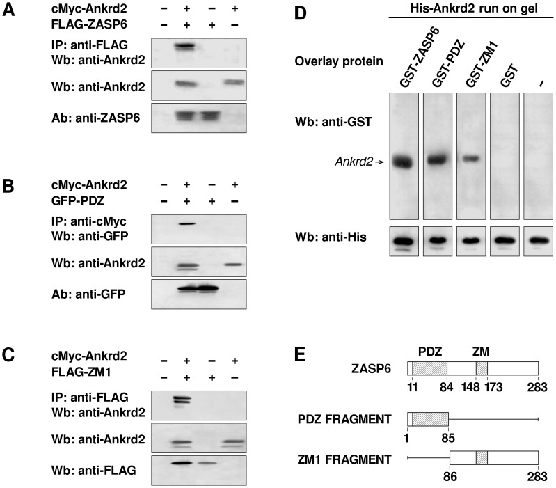 PDZ and ZM1 regions of ZASP6 directly bind Ankrd2. A) Co-IP of ZASP6 and Ankrd2 using lysates of COS-7 cells transfected with the indicated combination of pCMV vectors expressing cMyc-Ankrd2 and FLAG-ZASP6. Immunoprecipitation was performed with anti-FLAG antibody. The presence of Ankrd2 in the immune complex was confirmed by probing the membrane with mouse polyclonal anti-Ankrd2 antibody (upper panel). As controls, the cell lysates were tested with polyclonal antibodies to anti-Ankrd2 (middle panel) and anti-ZASP6 (bottom panel). B) Co-IP of PDZ-ZASP6 and Ankrd2 using lysates of COS-7 cells transfected with cMyc-Ankrd2 and pEGFP-PDZ as indicated. The cell lysates were immunoprecipitated with an anti-cMyc monoclonal antibody and probed with a polyclonal goat anti-GFP antibody conjugated to HRP (upper panel). Comparable expression levels of Ankrd2 and PDZ-ZASP6, weredemonstrated by probing the membrane with a mouse anti-Ankrd2 polyclonal antibody (middle panel) and rabbit anti-GFP polyclonal antibody (lower panel). C) Co-IP of ZM1-ZASP6 and Ankrd2 using lysates of COS-7 cells transfected with cMyc-Ankrd2 and FLAG-ZM1 as indicated. Ankrd2 was immunoprecipitated with anti-FLAG EZview resin and detected with an anti-Ankrd2 mouse polyclonal antibody (upper panel). As controls, cell lysates were tested with an anti-Ankrd2 mouse polyclonal antibody (middle panel) and with an anti-FLAG rabbit polyclonal antibody (bottom panel). All secondary antibodies were conjugated with HRP. D) GST-overlay assay with purified recombinant proteins expressed in E. coli . His-Ankrd2 (4 μg) was separated by SDS-PAGE, blotted and membrane strips were incubated with 4 μg of either GST-ZASP6, GST-PDZ, GST-ZM1 or GST alone, washed and then probed with anti-GST goat polyclonal antibody. As a control, an anti-histidine antibody was used to probe membrane strips identical to those used for the overlay to show that the His-Ankrd2 protein was equally loaded (lower panel). E) A schematic diagram of ZA