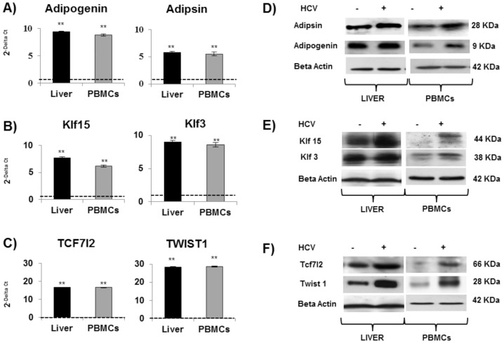 HCV up-regulates genes involved in lipid metabolism but with addictional role in inflammation, proliferation and transformation. Real-time analysis (mean values± S.D) of ADIG and Adipsin (A), KLF15 and KLF3 (B), TCF7L2 and TWIST 1 (C) are expressed as fold change, and normalized with an housekeeping gene. Asterisks indicate significant difference between HCV+ vs HDs (*p