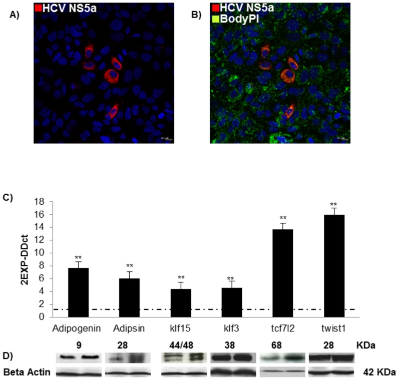 In in vitro HCV model up-regulates genes involved in lipid metabolism. Immunofluorescence assay HCV NS5A (red) (A) and lipid accumulation (green) (B). C) Real-time analysis (mean values± S.D) of ADIG, Adipsin, KLF15, KLF3, <t>TCF7L2</t> and TWIST 1 are expressed as fold change and normalized with a housekeeping gene. Asterisks indicate significant difference between J6/JFH1 HuH7.5 vs HuH7.5 (*p