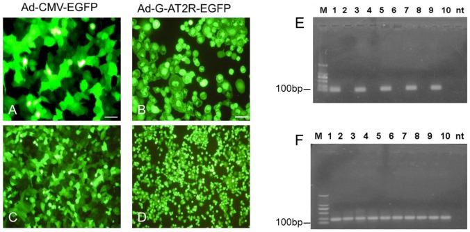 Viral vector–mediated expression of AT2R in prostate cancer cell lines. DU145 cells were transduced with Ad-G-AT2R-EGFP(B and D) and Ad-CMV-EGFP (A and C) (100 ifu/cell) for 2 days, and cell morphology was examined under a fluorescence microscope. Scale bars, 50μm. Total RNA was extracted from transduced DU145 cells and AT2Rs were detected by real time RT-PCR. Ethidium bromide–stained gels show AT2R (E) and GAPDH (F) transcripts in transduced cells. M, DL 2,000 DNA Maker (Takara); 1, 3, 5, 7, 9: transduced with 10, 20, 50, 100, 200 ifu/cell separately of Ad-G-AT2R-EGFP; 2, 4, 6, 8, 10: transduced with 10, 20, 50, 100, 200 ifu/cell separately of Ad-CMV-EGFP.