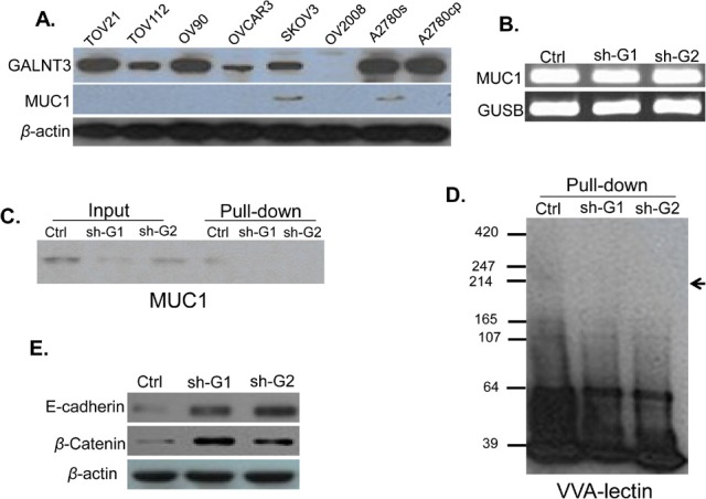 Analysis of GALNT3-mediated MUC1 glycosylation in EOC cells A. Western blot analysis of GALNT3 and MUC1 endogenous protein expression in different EOC cell lines, including A2780s; β-actin was used as a loading control; B. Semi-quantitative RT-PCR analysis of MUC1 mRNA levels in the control clone (ctrl) and shRNA- GALNT3 clones 1 and 2 (sh-G1 and sh-G2); the GUSB gene was used as an internal control; C. Western blot analysis of MUC1 expression in the ctrl, the sh-G1 and the sh-G2 A2780s clones before (input) and following pull-down assay using biotin-conjugated VVA lectin and streptavidin agarose (pull-down); D. VVA-lectin-mediated immunoblot analysis of GalNAc-conjugated proteins in protein lysates of the ctrl, the sh-G1 and the sh-G2 A2780s clones following VVA lectin pull-down assay (pull-down). The arrow indicates bands corresponding to possible GalNAc-conjugated MUC1 peptides; E. Western blot analysis for E-cadherin and β-catenin expression in the ctrl, the sh-G1 and the sh-G2 A2780s clones; β-actin was used as a loading control