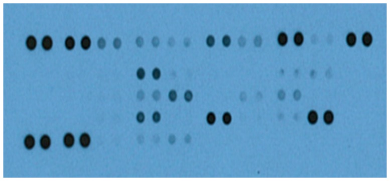 A representative image of the various biomarkers detected in the sera of IBS patients and healthy volunteers. Each pair of horizontal blots (bands) represent a different biomarker present in the serum, whereas the intensities of the blots characterize the amount of the respective biomarker. Sera (250 μL) from 60 IBS patients (44 idiopathic IBS and 16 post-infectious IBS) and 40 healthy volunteers were evaluated for the presence of 36 different biomarkers using the Proteome Profiler Human Cytokine Array Panel A Kit (R D Systems, Minneapolis, MN). Samples were incubated with a membrane embedded with biotinylated antibodies that are specific for each of the 36 biomarkers analyzed. For detection, the membranes were probed with the Pierce ECL Western Blotting Substrate (Thermo Scientific, Rockford, IL) and exposed to an X-ray film, following incubation with a secondary antibody labelled with streptavidin-horse radish peroxidase. The exposed film was processed using SRX-101A Medical Film Processor (Konica Minolta). Intensities of the blots were determined and expressed as pixel densities using ImageJ (National Institutes of Health, Bethesda, MD).