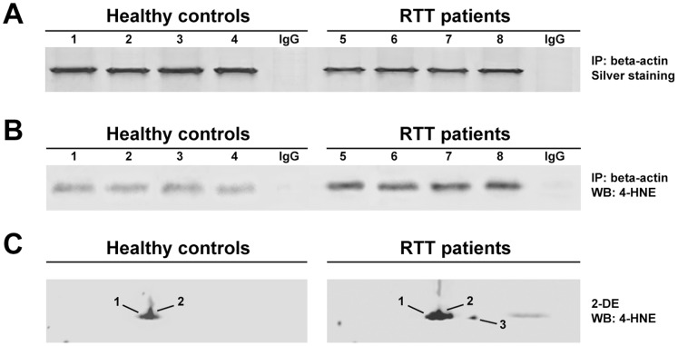 4-HNE/beta-actin adducts in RBC membranes. (A) SDS-PAGE (silver staining) of immunoprecipitated beta-actin from RBC ghosts of healthy control subjects (1–4) and RTT patients (5–8). (B) Western blot analysis of 4-HNE on immunoprecipitated beta-actin from RBC ghosts of healthy control subjects (1–4) and RTT patients (5–8). Immunoprecipitation (IP) with normal rabbit IgG served as a negative control. (C) 2-DE/Western blot analysis of 4-HNE on beta-actin from RBC ghosts proteome.