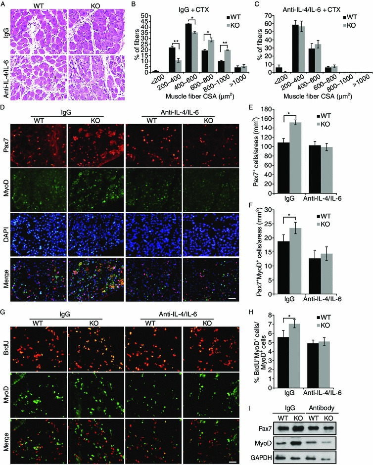 RNF13 regulates muscle regeneration by enhancing <t>IL-4/IL-6</t> expression . (A) Neutralizing antibodies against IL-4 and IL-6 (or control IgG antibodies) were injected into the TA muscles of RNF13 +/+ and RNF13 -/- mice before CTX damage. Sections from TA muscles damaged for 5 d were stained with H E. Scale bar = 200 μm. (B and C) The CSAs of regenerating muscle fibers were analyzed in H E-stained sections. Five pairs of mice were used at each time point, and more than 10 sections from each mouse were analyzed. (D) Frozen sections of TA muscles, injected with anti-IL-4/IL-6 or control antibodies, were immunostained for Pax7 (red), MyoD (green), and nuclei (DAPI; blue). The bottom panel shows a merged image. (E and F) Pax7 + and Pax7 + /MyoD + cells in defined areas were counted. More than 50 sections from five individuals were analyzed. (G) Frozen sections of TA muscles injected with anti-IL-4/IL-6 or control antibodies were immunostained for BrdU (red) and MyoD (green). (H) The percentage of BrdU + cells in the MyoD + cell population was determined. More than 50 sections from five individuals were analyzed. (I) Pax7 and MyoD expression in the damaged muscle injected with anti-IL-4/IL-6 or control antibodies was detected by Western blot. Data are presented as means ± SEs (error bars; * P