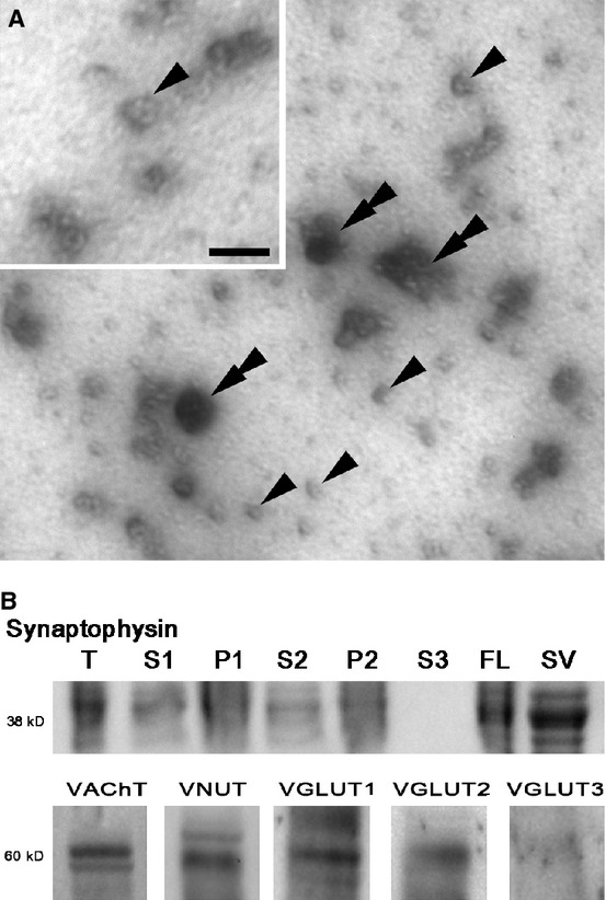 Synaptic vesicles can be enriched from electroplaques of Torpedo californica and shown to contain four neurotransmitter transporters. (A) Electron micrograph image (30,000×) of negatively stained vesicles isolated and enriched from electroplaque tissue. Sample contains abundant ~80 nm vesicles (some marked with single arrowheads) and occasional large clusters of vesicles and debris (double arrowheads). (A) ( insert ) Higher magnification (50,000×) negative stain image shows characteristic profile of membrane vesicles, Scale bar = 100 nm. (B) Immunoblot of the 38 kDa protein synaptophysin demonstrates isolation and enrichment of synaptic vesicles during the isolation procedure. Synaptophysin was seen in the tissue (T), and discarded pellets (P1, and P2), however, during isolation the majority of vesicles are maintained in the much larger by volume supernatant (S1 and S2) until the final centrifugation. In the final centrifugation, the vesicles move through the supernatant (S3) and collect on the fluffy layer (FL). The fluffy layer was collected, and the synaptic vesicles were further enriched by size exclusion chromatography (SV). Purified vesicles were tested by immunoblot and found to be positive for the ~60 kDa transporter proteins: VAChT, VNUT, VGLUT1, VGLUT2. Extra bands are possibly due to differences in protein glycosylation. No signal was detected for the transporter protein VGLUT3.