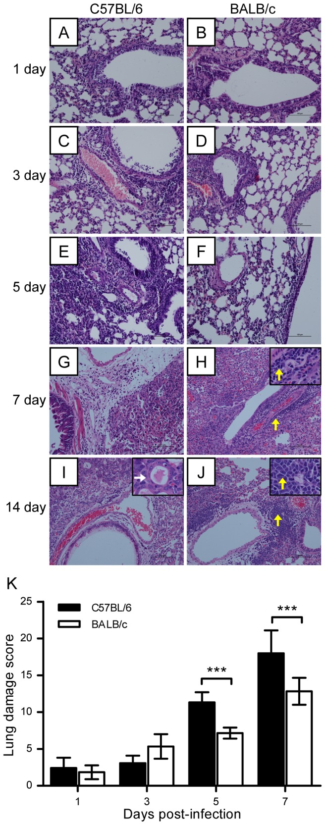 Lung injury in C57BL/6 and BALB/c mice following H7N9 virus infection. C57BL/6 and BALB/c mice were challenged intranasally with 10 6 TCID 50 of AH1/H7N9 virus and euthanized on days 0, 1, 3, 5, 7, and 14 after viral infection. (A–J) Histological changes in mouse lung tissues on days 0, 1, 3, 5, 7, and 14 postviral challenge. White and yellow arrows indicate the regeneration of pneumocytes and dissociation cells, respectively. (K) Semiquantitative assessments of lung lesions in mice on days 1, 3, 5, and 7 postviral infection ( n = 6). The data are expressed as the mean ± SD (bar). *, **, and *** indicate P