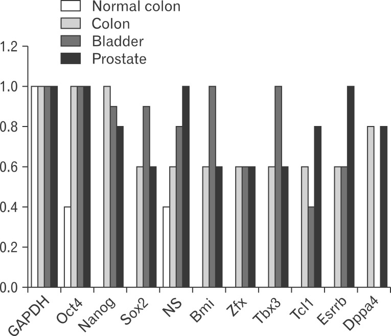 Histogram of polymerase chain reaction results in colon, bladder and prostate cancer samples, as well as HT-29, Caco-2, HT-1376, LNCaP, and HepG2 cancer cell lines. <t>Oct4</t> was expressed in 100% of bladder, colon, and prostate tumor samples. Expression of Nanog was detected in 100% of the colon cancer samples, 90% of the bladder cancer samples and 80% of the prostate cancer samples. Nucleostemin was detected in 100% of the prostate cancer samples, 80% of the bladder cancer samples, and 60% of the colon cancer samples.