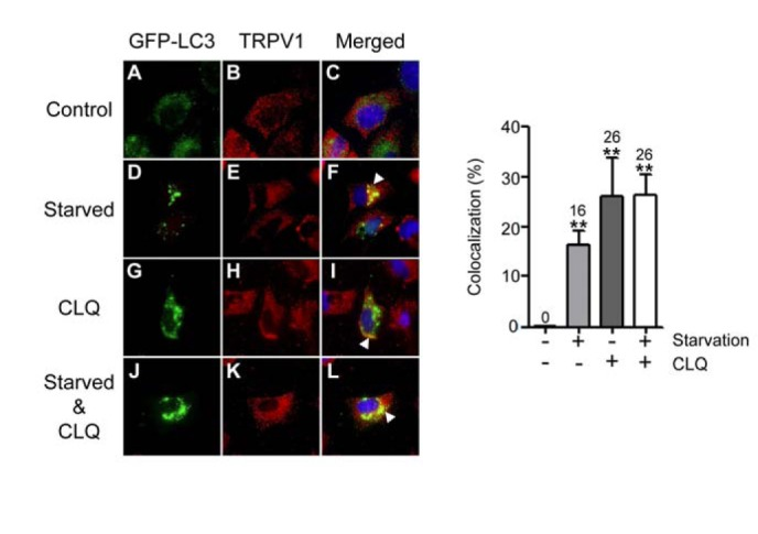 Starvation augments the colocalization of GFP-LC3 with TRPV1. (A–L) HeLa cells were transiently transfected with pGFP-LC3. After 2 days, cells were incubated in either the absence or presence of CLQ for 6 h in normal medium containing serum (A–C and G–I) or in HBBS to stimulate starvation (D–F and J–L). Control represents DMSO treatment instead of CLQ. Immunofluorescence was performed using rabbit anti-TRPV1 and Alexa Fluor 546 goat anti-rabbit IgG antibody for TRPV1 (red), GFP-LC3 (green) and DAPI for nuclei (blue). White arrow heads indicate the regions of colocalization of GFP-LC3 with TRPV1. (Right panel) Colocalization of GFPLC3 with TRPV1 in the left panel (C, F, I, and L) was quantified. Columns and error bars represent the mean values and standard deviations. The numbers above the error bars indicate the mean values. ** P