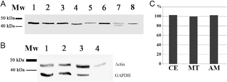 western blot using the Trypanosoma cruzi actin gene (TcActin) antibody. A: different trypanosomatids were probed with detection of a single band of about 42 kDa, except for Phytomonas serpens (Lane 7) where two close faint bands could be observed. Lanes 1-8 contained 10 7 cells (1: T. cruzi ; 2: Trypanosoma brucei ; 3: Leishmania major ; 4: Strigomonas culicis ; 5: Crithidia fasciculata ; 6: Angomonas deanei with symbiont; 7: Phytomonas serpens ; 8: Herpetomonas samuelpessoai ); B: different T. cruzi stages probed against the anti-TcActin antibody (upper bands) and an anti-glyceraldehyde 3-phosphate dehydrogenase antibody (lower bands) [1: culture epimastigote (CE) in liver infusion tryptose (LIT) medium; 2: metacyclic trypomastigote (MT); 3: <t>amastigote</t> (AM); 4: <t>Vero</t> cells (actin control); 1-4 contained 15 µg protein/lane]; C: actin expression level as evaluated by integrated density of protein bands (using GAPDH band as normaliser) analysed by the ImageJ software (n = 3). To evaluate the actin expression in AM, the Vero cell band signal was subtracted from the AM band signal; MW: molecular weight markers.