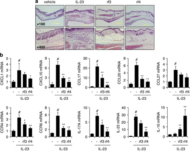 Amelioration of cytokine-induced cutaneous inflammation in mice skin by rf3 and rf4. ( a ) Mouse ears were topically treated with rf3 or rf4 and subsequently injected with phosphate-buffered saline or mouse IL-23 (500 ng/10 μl, each) into mouse ears every other day for 14 days ( n =5 mice per group). Histological assessment of the sections from the ears was performed by H E staining. ( b ) The mRNA levels of pro-inflammatory mediators were determined by quantitative real-time PCR in IL-23-injected mouse ears. Data were normalized to GAPDH signal and are presented as -fold change relative to the phosphate-buffered saline-treated group. Results are expressed as the mean±s.e.m. from three independent experiments. # P