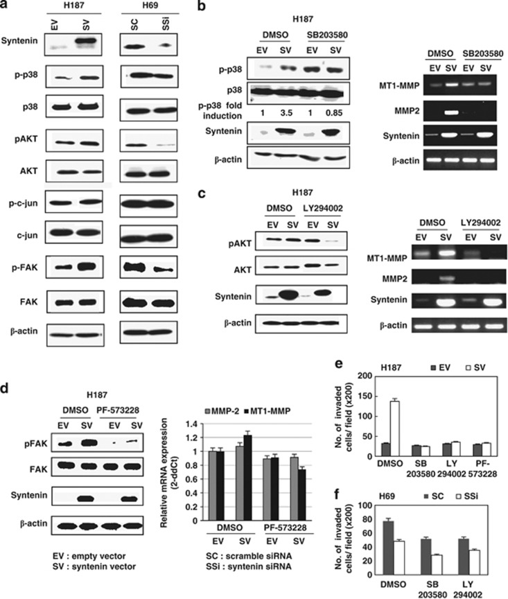 Activation of p38, AKT and focal adhesion kinase by forced expression of syntenin in small cell lung cancer cells. ( a ) Western blot analysis revealed enhanced phosphorylation of p38 MAPK and AKT after syntenin overexpression in NCI-H187 cells, compared with empty-vector transfection. In contrast, phosphorylated AKT and p38 MAPK were shown to be decreased by syntenin inhibition in NCI-H69 cells. Activation of focal adhesion kinase (FAK) by syntenin overexpression and suppression of FAK by syntenin inhibition was also observed without stimulation of any extracellular matrix proteins. ( b ) Western blot analysis after administration of SB203580 (10 μ M ) revealed the inhibition of p38 activation in syntenin-transfected cells compared with the p38 level in empty vector-transfected cells, although the basal level itself was upregulated, due to the role of SB203580 as not only an inhibitor but also as a partial agonist (left). In RT–PCR analysis, the inhibition of p38 MAPK induced the inhibition of both MMP2 and MT1-MMP mRNA (right). ( c ) The administration of LY294002 (1 μ M ) suppressed AKT activation in syntenin-transfected cells (left), which led to the downregulation of MMP2 and MT1-MMP, despite syntenin overexpression (right). ( d ) The activation of FAK was inhibited by administration of PF-573228 (1 μ M ) (left), which antagonized the syntenin-mediated upregulation of MMP2 and MT1-MMP (right). ( e ) When FAK, P38 and PI3K/AKT were inhibited by pharmacological inhibitors in NCI-H187 cells, the number of invaded cells in the Matrigel invasion assay did not increase in syntenin-transfected cells. ( f ) In NCI-H69 cells, the number of invaded cells decreased after inhibition of p38 and PI3K/AKT. The invasiveness of NCI-H69 cells was suppressed by syntenin inhibition. MAPK, mitogen-activated protein kinase; MMP, matrix metalloproteinase; MT1, membrane type 1.