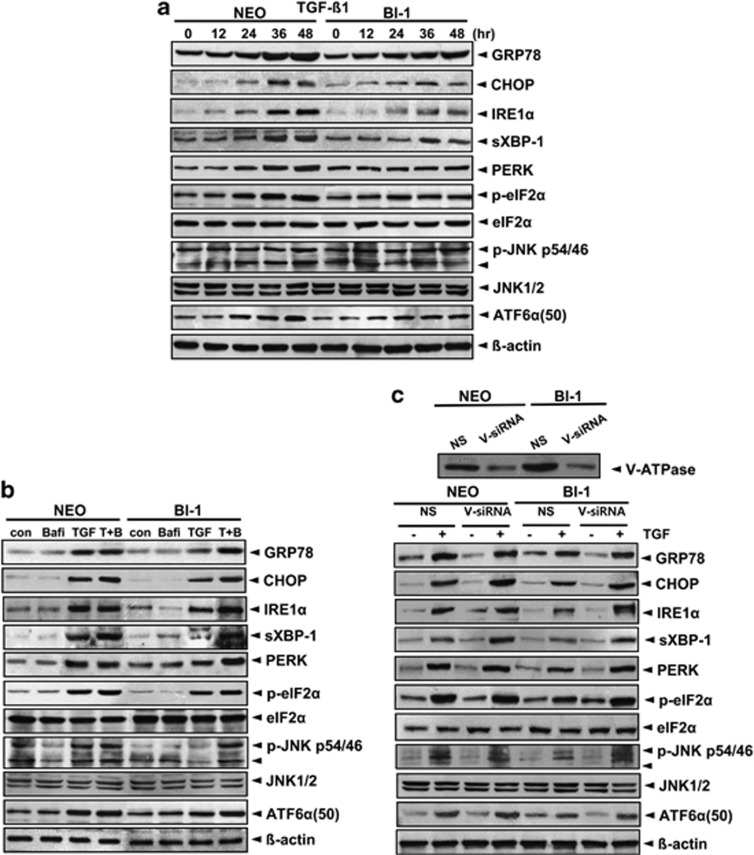 BI-1-associated lysosomal activity leads to ER stress regulation. ( a ) Neo and BI-1 cells were cultured in serum-free medium with 10 ng/ml TGF- β 1 for 0, 12, 24, 36, or 48 h. ( b ) Neo and BI-1 cells were cultured in serum-free medium with 10 ng/ml TGF- β 1 in the presence or absence of 10 nM bafilomycin for 48 h. Neo and BI-1 cells were transfected with non-specific or V-ATPase specific siRNA and <t>immunoblotting</t> was performed with anti-V-ATPase antibody. ( c ) Separately, siRNA-transfected Neo and BI-1 cells were cultured in serum-free medium with 10 ng/ml TGF- β 1 for 48 h. Immunoblotting was performed with anti-GRP78, CHOP, IRE-1 α , sXBP-1, PERK, p-eIF2 α , eIF2 α , p-JNK, JNK1, ATF6 α (50KD), and β -actin antibodies. NS, non-specific siRNA; V-siRNA, V-ATPase siRNA