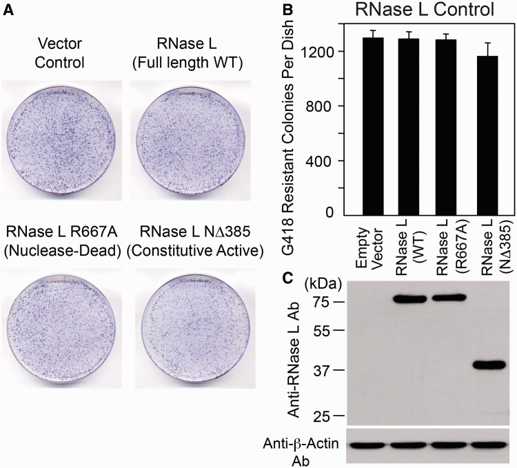 Human RNase L alone does not affect G418-resistant foci formation. ( A ) Results from the Assay: HeLa-M cells were co-transfected with pcDNA 3.0 (Gibco/Life Technologies/InVitrogen) and either an empty vector (pFLAG-CMV-2) or an amino-terminal FLAG-tagged RNase L expression plasmid. The cells were subjected to selection for 10 days and G418-resistant foci were fixed and stained with crystal violet for visualization purposes. A representative tissue culture dish for each condition is shown. ( B ) Quantitation of the Assays: The X-axis depicts construct names. The Y-axis depicts the number of G418-resistant foci per cell culture dish. Quantification was performed as outlined in the legend to Figure 2 B. Data are shown as the mean ± standard deviation (SD) from a single experiment with three technical replicates. The experiment was conducted three times (biological replicates) with similar results. No statistically significant difference was found with one-way ANOVA and post hoc tests. ( C ) Protein expression analyses: The WT RNase L, catalytically inactive RNase L mutant (R667A) and constitutively active (NΔ385) RNase L mutant were detected from total cell lysates in western blots with anti-RNase L antibody 2 days after transfection. β-Actin served as loading and transfer control. Size standards are indicated in kDa at the left of the gel.