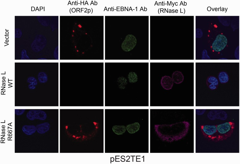 Expression of <t>RNase</t> L blocks L1 RNP formation. HeLa-M cells were co-transfected with pES2TE1 and either an empty vector (pcDNA 3.0) or a plasmid that encodes an amino-terminal Myc-tagged RNase L expression plasmid. Immunofluorescent confocal microscopy was used to examine L1 ORF2p accumulation in cytoplasmic foci by exploiting the FLAG-HA epitope-tag in pES2TE1 48 h after transfection. The top labels indicate the antibodies used to detect the indicated proteins: anti-HA-ORF2p, red; anti-EBNA-1, green; anti-Myc RNase L, magenta. The labels on the left side of the figure indicate the empty vector or RNase L constructs that were co-transfected into cells. The rightmost column indicates the merged overlay staining. L1 ORF2p formed discrete cytoplasmic punctate localization in co-transfection experiments performed with the empty vector and RNase L catalytically inactive mutant (R667A), but not with WT RNase L. For each condition, either two or three slides were examined per experiment. About 200 cells were examined per slide and representative images were captured. The experiment was conducted three times (biological replicates) with similar results.