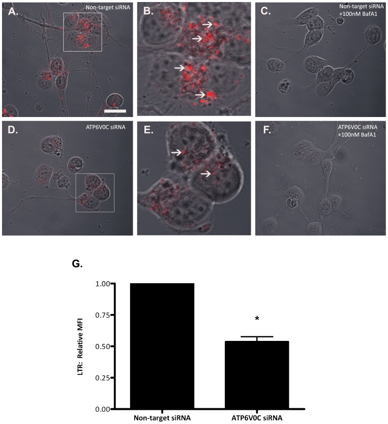 Functional validation of ATP6V0C knockdown. Vesicular acidification following siRNA-mediated knockdown of ATP6V0C was assessed using Lysotracker Red (LTR). LTR-positive punctae were imaged in differentiated SH-SY5Y cells at 96 h following nucleofection of either Non-target siRNA control (A–C) or ATP6V0C siRNA (D–F). DMSO vehicle or 100 nM bafilomycin A1 (BafA1) was added to cells at 3 h prior to the addition of LTR. Scale bar = 20 μm. Inset boxes in panels A and D are magnified in panels B and E respectively, with arrows indicating LTR-positive punctae. (G) Flow cytometric quantification of LTR relative mean fluorescence intensity (MFI) in vehicle-treated cells at 96 h following nucleofection with Non-target vs. ATP6V0C siRNA. Data are expressed as mean ± SEM and are represented by six independent experiments. # p