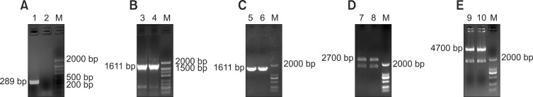 Identification of the recombinant plasmid. (A) Detection of the housekeeping gene GAPDH. (B) Identification of the target gene by RT-PCR. (C) PCR product of the Fyn gene was subcloned into pMD18-T-Fyn and pEGFP-N1-Fyn. (D) Identification of pMD18-T-Fyn fragments produced by restriction enzyme digestion with Eco R I and Sma I. (E) Identification of pEGFP-N1-Fyn fragments generated by restriction enzyme digestion with Eco R I and Sma I. Lane 1, RT-PCR GAPDH product; Lane 2, negative control; Lane 3, RT-PCR Fyn product from brain; Lane 4, positive control; Lane 5, PCR product of pMD18-T-Fyn; Lane 6, PCR product of pEGFP-N1-Fyn; Lanes 7 and 9, positive control; Lanes 8 and 10, recombinant plasmid identification by digestion with EcoR I and Sma I (pMD18-T-Fyn, 2700 bp; pEGFP-N1, 4700 bp; Fyn, 1611 bp); Lane M, DNA marker.