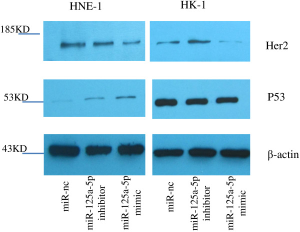 miR-125a-5p mediated the expression of p53 and Her2 proteins in NPC cells. Western blot analysis confirmed that p53 protein expression was lower in HNE-1 cells than in HK-1 cells. After transfection with oligo-miR-125a-5p mimic, p53 protein expression was increased in HNE-1 cells compared with the control group. Her2 protein expressions were decreased in both cell lines following transfection with oligo-miR-125a-5p mimic in HNE-1 and HK-1 cells. Her2 protein expressions in HK-1 cells were increased after transfection with oligo-miR-125a-5p inhibitor.