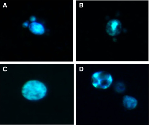 Sterol distribution in Paracoccidioides spp.. Yeast cells were fixed, stained with filipin and observed by fluorescence microscopy. Staining in the control Pb 01 (A) and Pb 18 (C) cells was diffuse with homogeneous labeling. Pb 01 (B) and Pb 18 (D) cells treated with itraconazole displayed heterogeneous fluorescence.