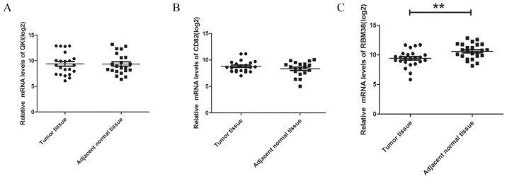 The expression levels of RBM38 were downregulated in HCC resection specimens. The expression levels of QKI ( A ); CD82 ( B ) and RBM38 ( C ) in HCC and paired adjacent noncancerous tissues were measured by qRT-PCR and normalized to GAPDH. The significant differences between samples were analyzed using the Student's t test. (log 2, ** p