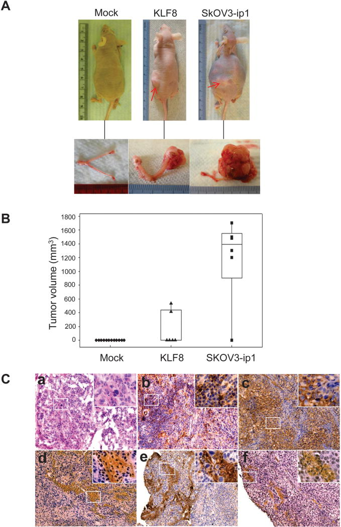 KLF8 alone is sufficient to induce to induce T80 cells to form orthotopic ovarian tumors. A, Representative ovarian tumors formed by KLF8 expressing T80 cells. Mock and SKOV3-ip1 were used as negative and positive controls, respectively. 5 x 10 5 cells per cell lines were injected into the ovarian bursa. Photos of representative mice (top) and tumors (bottom) were taken 60 days or (SKOV3-ip1) 90 days (mock and KLF8) after injection. B , Tumor formation rate. The ovarian tumor volume recorded at the time of euthanasia is presented by box-plot (see tumor incidence in Supplemental Table 1 ). C . The T80/KLF8 ovarian tumors are highly similar to tumors of ovarian cancer patients. . H E and IHC staining of the tumors were performed as described in Materials and Methods for expression of the KLF8 and human ovarian cancer marker proteins. a, H E (100X); b, KLF8 (100X); c, pan-cytokeratins (100X); d, CA 125 (100X); e, mesothelin (100X); f, HE4 (100X). Inlets, 400X.