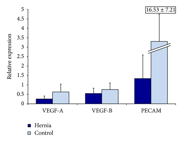 Relative <t>VEGF-A,</t> VEGF-B, VEGF-R, HIF-1A, and PECAM RNA levels in hernia and control ASCs by QRT-PCR, after 12 hours of incubation in hypoxic conditions. Hernia ASCs in blue and control ASCs in light blue.