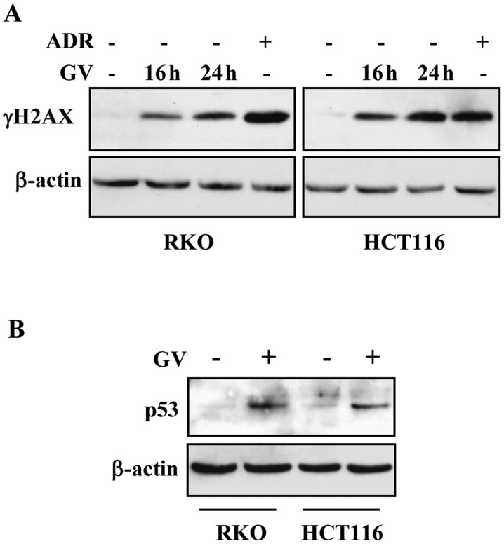 Gentian violet (GV) induces DNA damage with p53 stabilization. (A) RKO and HCT116 cells were treated with GV (1 μ M) for 16 and 24 h. Western immunoblotting was performed on equal amount of total cell extracts to detect phospho-Histone H2A.X (γH2AX) levels. Adriamycin (ADR) (2 μ g/ml) was used as control of DNA damage. Anti-β-actin was shown as protein loading control. (B) RKO and HCT116 cells were treated with GV (1 μ M) 24 h. Western immunoblotting was performed on equal amount of total cell extracts to detect p53 levels. Anti-β-actin was used as protein loading control.