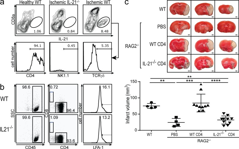 IL-21 is primarily produced by brain-infiltrating CD4 + T cells. (a) Intracellular cytokine staining of lymphocytes isolated from n = 5 pooled healthy WT, ischemic IL-21 −/− , or ischemic WT mouse brains 24 h after tMCAO or sham procedure showing IL-21 versus CD8α expression. Histograms show CD4, NK1.1, and TCRγδ expression on IL-21 + cells from ischemic WT brain. (b) CD45, CD4, and LFA-1 expression by negative fractions purified from WT and IL-21 −/− lymph node cells by CD4 + negative selection using magnetic cell separation before transfer into RAG2 −/− recipients. (c) Infarct volume in WT mice ( n = 4), RAG2 −/− mice ( n = 4), RAG2 −/− mice + WT CD4 T cells ( n = 10), and RAG2 −/− mice + IL-21 −/− CD4 T cells ( n = 10) 24 h after tMCAO. Representative TTC-stained 2-mm mouse brain slices shown on top. Data are representative of two independent experiments. **, P