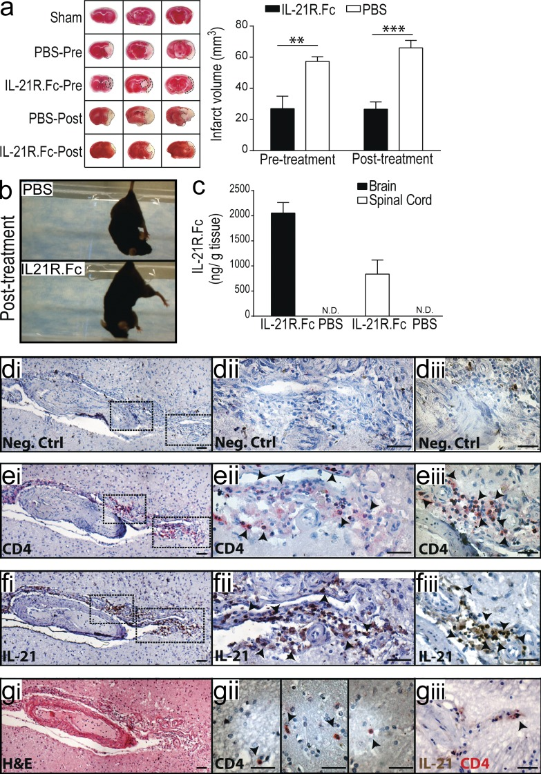 Blockade of IL-21 signaling before or after tMCAO reduces infarct size in WT mice. (a) Infarct volumes 24 h after tMCAO in WT mice treated with 500 µg recombinant mIL-21R.Fc or PBS 1 h before (pretreatment) or 2 h after (posttreatment) surgery. Representative TTC-stained brain slices shown on left ( n = 3–4 mice per group). (b) Still image from Video 1 depicting behavioral differences between WT mice posttreated with IL-21R.Fc or PBS. (c) IL-21R.Fc protein levels in the indicated organs 20–24 h after tMCAO in WT mice injected with 500 µg IL-21R.Fc 2 h after start of reperfusion ( n = 2–4 mice per group). N.D., not detected. Data are representative of two independent experiments. **, P
