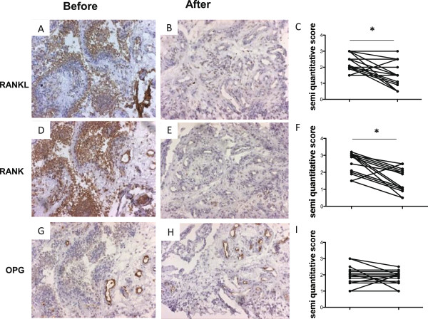 Methotrexate decreases expression of <t>RANKL</t> and <t>RANK</t> in the rheumatoid synovium of early-untreated rheumatoid arthritis. Brown immunohistochemistry (diaminobenzidine) staining of cell surface markers in synovial biopsies of early rheumatoid arthritis (RA). Synovial receptor activator of the NF-κB ligand (RANKL) expression in early, untreated RA synovium (A) decreased significantly following 8 weeks of methotrexate (MTX) treatment (B) , as evaluated by semi-quantitative double-blind microscopic analysis (C) . Synovial receptor activator of NF-κB (RANK) expression in early, untreated RA synovium (D) decreased significantly following 8 weeks of MTX treatment (E) , as evaluated by semi-quantitative double-blind microscopic analysis (F) . Synovial osteoprotegerin (OPG) expression in early, untreated RA (G) is not changed following 8 weeks (H) of MTX treatment, as evaluated by semi-quantitative double-blind microscopic analysis (I) . *p