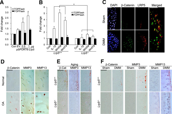Catabolic regulation of LRP5 mediates via β-catenin-Tcf/Lef signaling. (A) Chondrocytes were transfected with 1 μg of empty vector (EV) or pSPORT6- Lrp5 plus the TOPflash or FOPflash reporter constructs. After 24 hours, transcriptional activation by β-catenin was determined by luciferase reporter gene assays ( n = 7 independent experiments). (B) Chondrocytes obtained from wild-type (WT) and Lrp5 -/- mice were treated with 1 ng/ml <t>interleukin</t> <t>1β</t> (IL-1β), 50 ng/ml Wnt3a or 500 ng/ml Wnt7a, and transcriptional activation by β-catenin was evaluated by luciferase reporter gene assays ( n = 6). Values are expressed as means ± SEM (* P