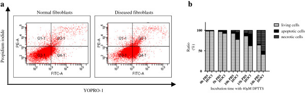 Proapoptotic effects of DPTTS analyzed with fluorescence-activated cells sorting. (a) Normal and HOCl fibroblasts were incubated with 40 μ M DPTTS for 5, 10, or 15 hours. The ratio of apoptosis to necrosis was analyzed with flow cytometry by using the Membrane Permeability/Dead Cell Apoptosis Kit with YO-PRO-1 and propidium iodide. Necrotic cells were PI positive, and apoptotic cells were YO-PRO-1 positive. One of three representative experiments is shown. (b) Kinetics of the apoptosis/necrosis ratio of normal and HOCl fibroblasts treated with 40 μ M DPTTS.