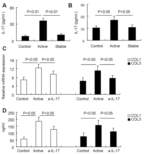 IL-17 derived from SSc patients induces collagen production in fibroblasts. (A) IL-17 concentration in sera of patients with active SSc ( n = 13), patients with stable SSc ( n = 32), and healthy controls ( n = 24). (B) PBMCs from patients with active SSc ( n = 6), patients with stable SSc ( n = 6), and healthy controls ( n = 6) were stimulated for 5 hours with PMA and ionomycin, and IL-17 in the supernatant was measured with ELISA. (C) Fibroblasts were stimulated for 48 hours with supernatants from cultures of PI-stimulated PBMCs from healthy controls (Control) or, supernatants from cultures of PI-stimulated PBMCs from patients with active SSc (Active), and neutralization of IL-17 (α-IL-17), and the gene expression of collagen 1 and collagen 3 was measured by real-time RT-PCR analysis. Results shown are representative of at least three independent experiments. (D) Fibroblasts were stimulated for 48 hours with supernatants from cultures of PI-stimulated PBMCs from healthy controls (Control) or, supernatants from cultures of PI-stimulated PBMCs from patients with active SSc (Active), and neutralization of IL-17 (α-IL-17), and the levels of collagen 1 and collagen 3 in the supernatants were determined with ELISA. Results shown are representative of at least three independent experiments.