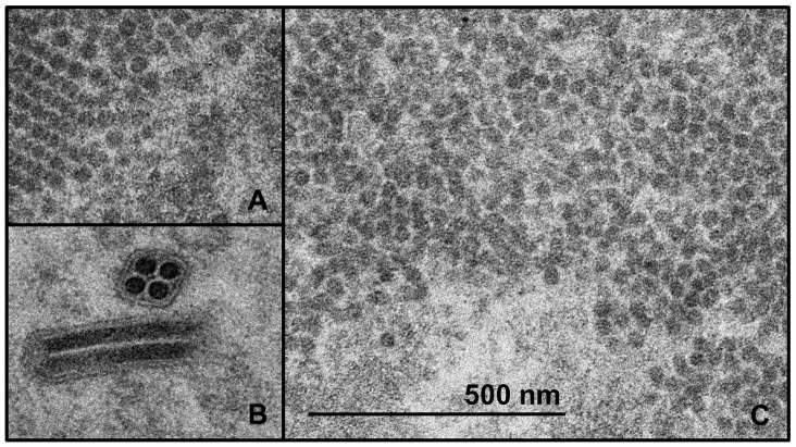 Transmission electron microscopy (TEM) images of thin-sections of AcMNPV-CHIKV37997 infected Sf 21 cells and pV1JNS-CHIKV37997 transfected HEK293 cells. ( A ) Putative CHIKV capsids formed in the cytoplasm of HEK293 cells. Capsid diameters are approximately 30–35 nm. ( B ) Baculovirus showing hallmark multiple nucleocapsids per envelope, with very electron dense nucleocapsids. Nucleocapsid diameter is approximately 40 nm. ( C ) Putative CHIKV capsids formed in the cytoplasm of Sf 21 cells. Capsid diameters are approximately 30–35 nm. Scale bar is equivalent for all images and represents 500 nm.