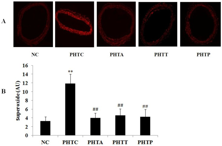 Fluorescence intensity of vascular wall in rats after drugs treatment. ( A ) Fluorescence intensity was the strongest in cirrhotic rats and diminished by treatment with apocynin, tempol or PEG-catalase. Each image is representative of results from 6 different animals. ( B ) The quantitative of fluorescence intensity was analyzed in rats after treatment with different drugs. Values are mean ± SEM; n=6 for each group. **: compared with NC, P