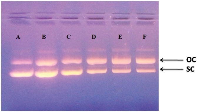 6MP induced damage to plasmid DNA in presence of light. Agarose gel electrophoresis pattern of ethidium bromide stained pBR322 DNA after the treatment with 6MP in presence of white light. Lane ' A ' depicts the 'Control' which contain only plasmid DNA. The concentrations of 6MP in lanes ' B–F ' was 100, 200, 300, 400 and 500 μM respectively. Arrows indicating OC and SC on the right represent the open circular and supercoiled forms of plasmid DNA.