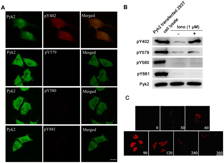 Ionomycin-induced Pyk2 tyrosine phosphorylation is site-specific only for Tyr-402. ( A ) PC12 cells were exposed to 1 μM ionomycin at 37°C for 90 s. The cells were fixed, and phosphotyrosine proteins were labeled by phosphorylation site-specific antibodies against Tyr-402 (pY402), Tyr-579 (pY579), Tyr-580 (pY580), or Tyr-881 (pY881) and TRITC-conjugated second antibody (red), respectively. Pyk2 expression was labeled by FITC (green). Scale bar, 5 μm. ( B ) PC12 cells were treated with or without 1 μM ionomycin at 37°C for 90 s, then lysed, and subjected to western blot using phosphorylation site-specific antibodies. Pyk2 transfected 293T cell lysate was used as a positive control. The total amount of Pyk2 was used as an internal control. ( C ) The time course of Pyk2 phosphorylation at Tyr-402 by ionomycin in PC12 cells. PC12 cells were exposed to 1 μM ionomycin at 37°C for the indicated times. The cells were labeled with pY402 site-specific polyclonal antibody, followed by a secondary layer of TRITC-conjugated second antibody to rabbit IgG (red). Scale bar, 10 μm.